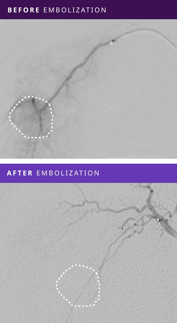 Before and After Tumor Embolization - Patient #1