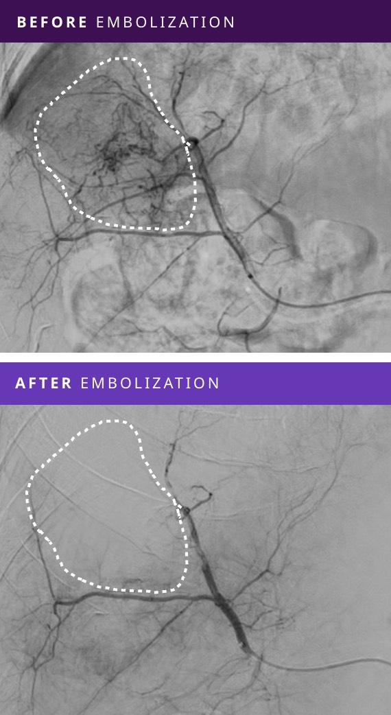 Before and After Tumor Embolization - Patient #5